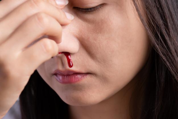 bloedneus door stress