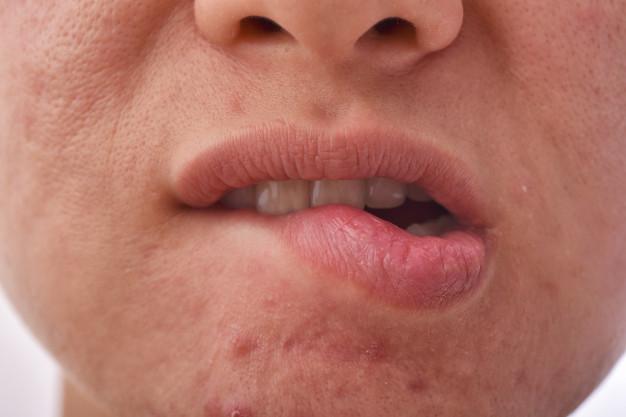 Een droge mond en keel door stress
